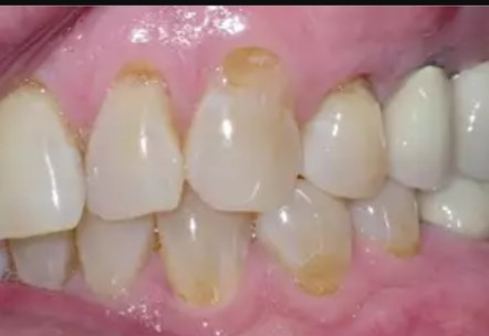 cavities at gum line