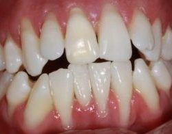receding Gums treatment , pictures