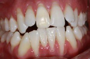 receding Gums treatment , pictures