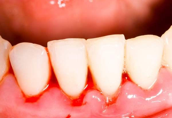 bleeding gums causes