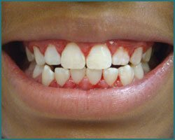 bleeding gums in children