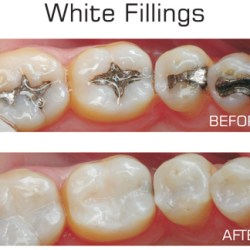 tooth filling materials