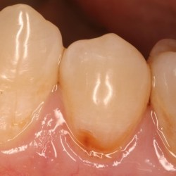 Prevent tooth erosion