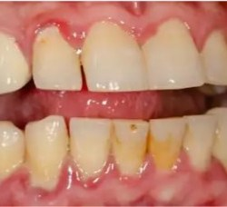 Gingivitis pictures 3