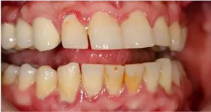 Gingivitis pictures 3