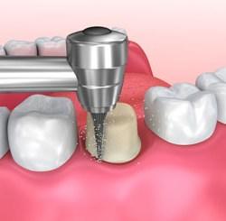 crown tooth repair