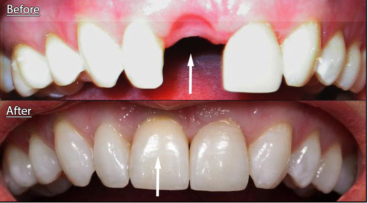 crowns on front teeth