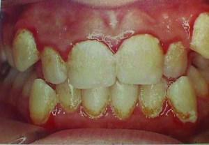 Gingivitis pictures 2