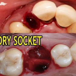 Dry socket vs normal