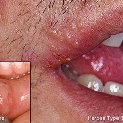 Cold sores in mouth