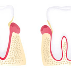Early periodontal disease treatment