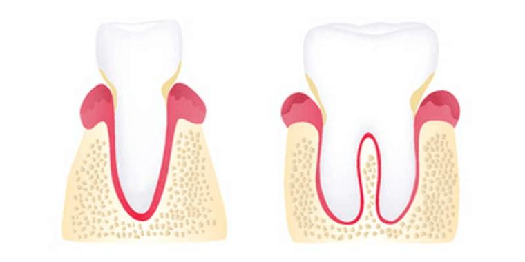 Early periodontalitis