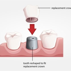 chipped tooth discoloration