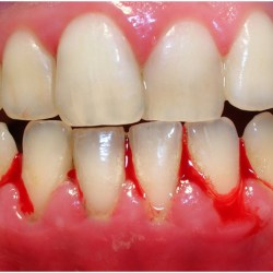 Is periodontal disease contagious