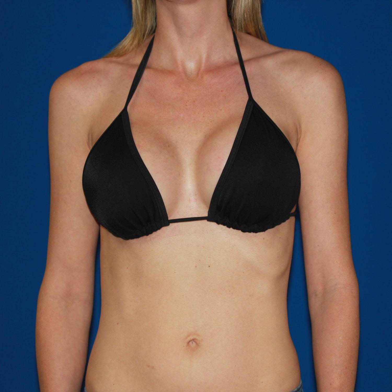 Breast Augmentation Sizing