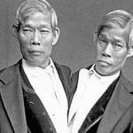 Rupa-rupanya kembar siam yang pertama adalah kacukan bangsa Melayu dan Cina