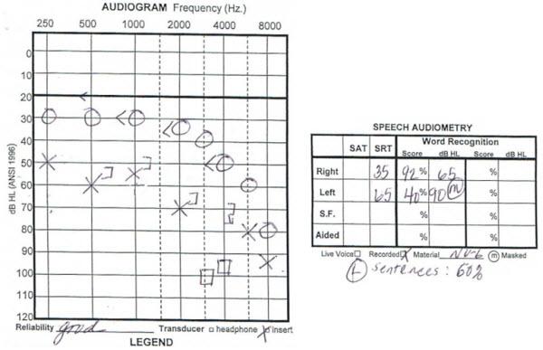 Asymmetrical Sensorineural Hearing Loss: Fitting