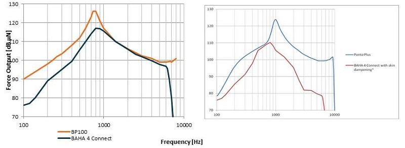 Implantable Auditory Technologies Ravi Sockalingam Bone