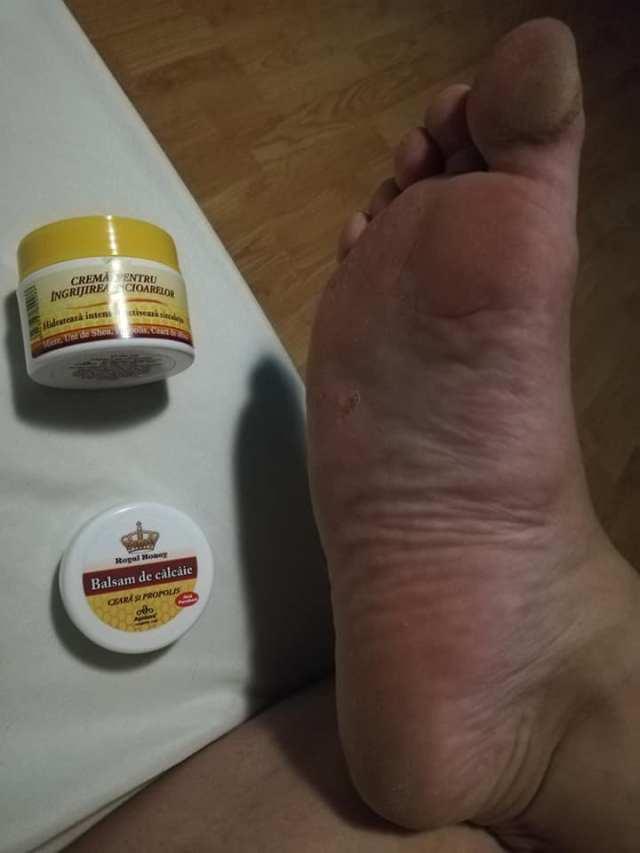 picior dat cu crema apidava