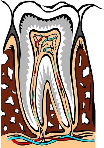 secțiune dinte