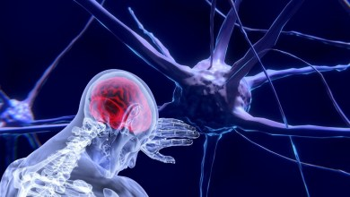 Factors that sharply increase the risk of stroke