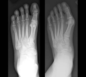 achilles tendinopathy and bunions can be results of ill-fitting shoes