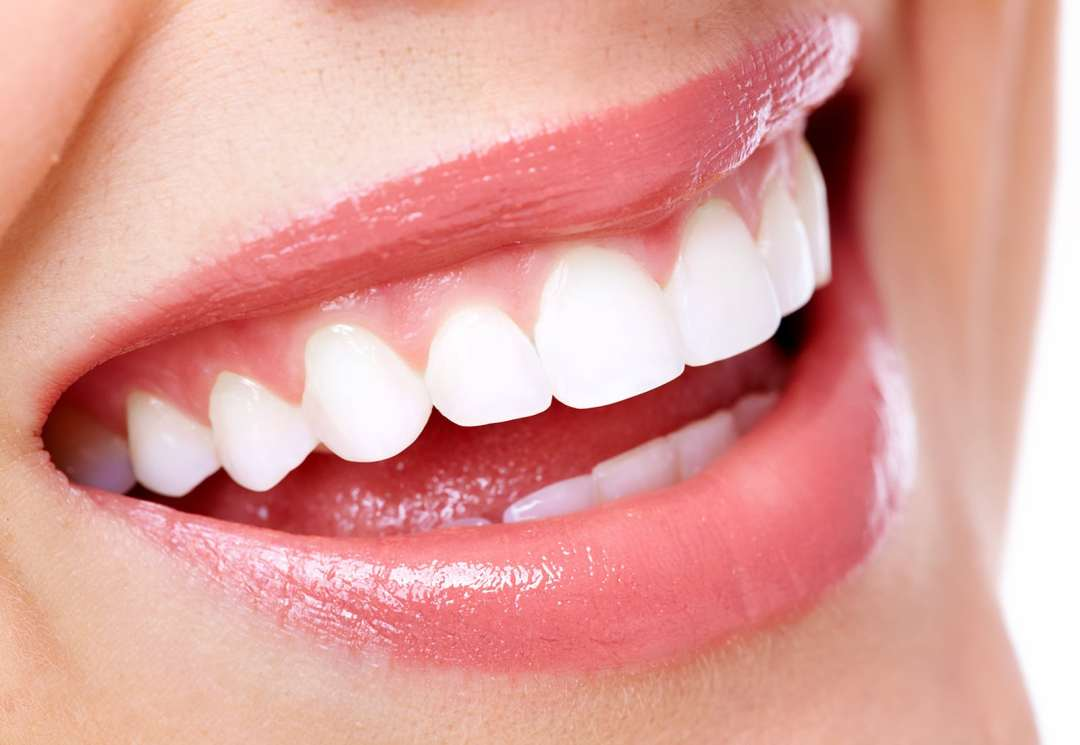 veneers - Our Services