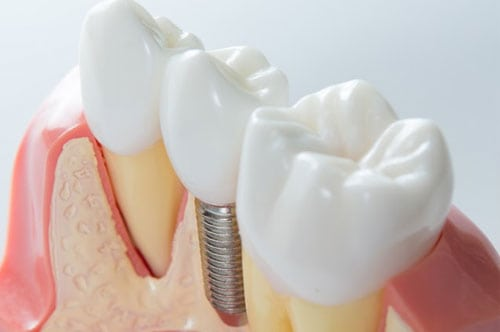dental implants 3 - Our Services