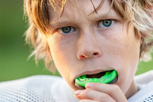 Mouth Guards Oregon City, OR | Pioneer Dental Group