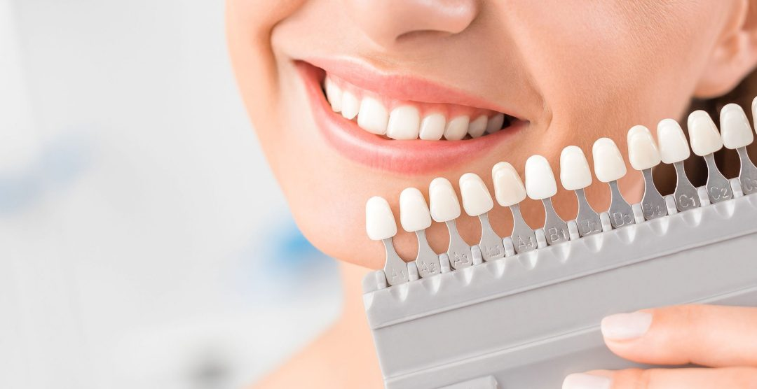 Teeth Whitening scaled - Cosmetic Spa Services