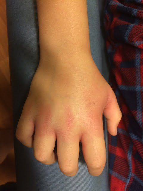 Redness and swelling from a bee sting