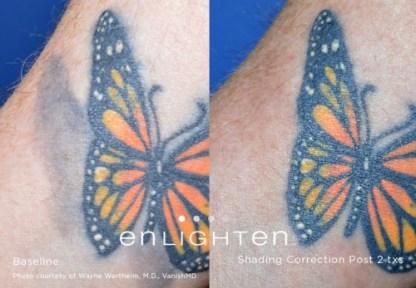 Tattoo lighten remove shading