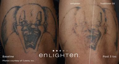 enlighten_Tattoo_Clown_Post12weeks3tx