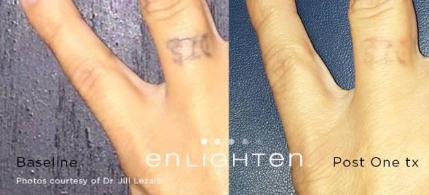 enlighten_Tattoo_Finger