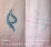 enlighten_Tattoo_Symbol