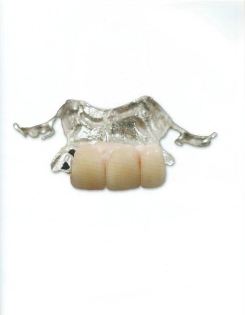 La prothèse dentaire de Bobby Hull