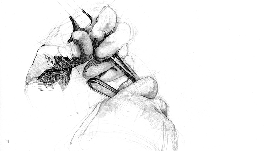surgical drawing