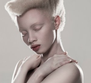 Zimbabwe Sets Milestone in Africa for Albinism