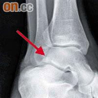 醫健:新興疾病雪板足踝 - 東方日報