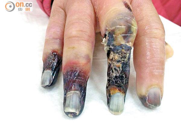 手指變藍或患硬皮癥 - 東方日報