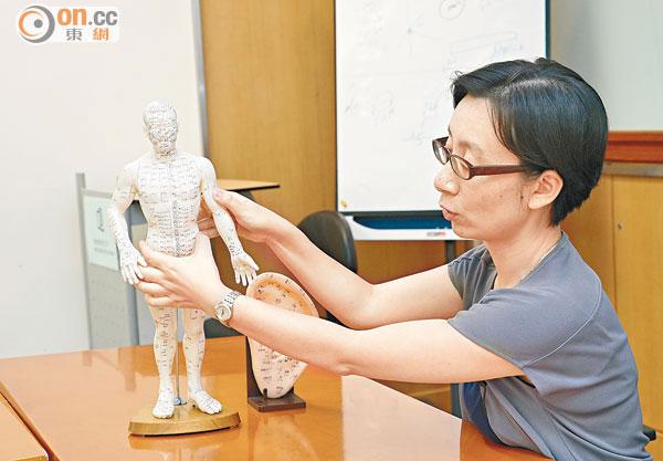 浸大研針灸減肥成效 - 東方日報