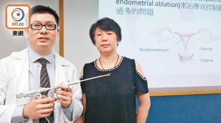 宮膜消融紓經期血崩 - 東方日報