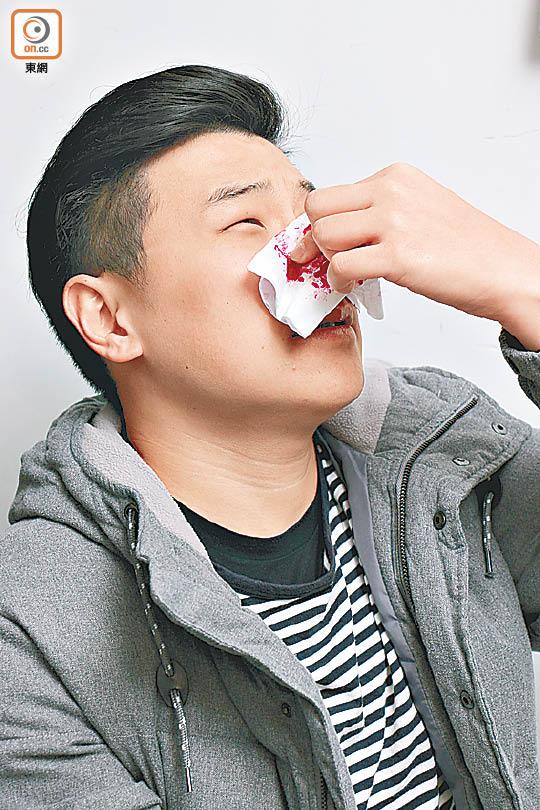 免疫治療煞停鼻咽癌惡化 - 東方日報
