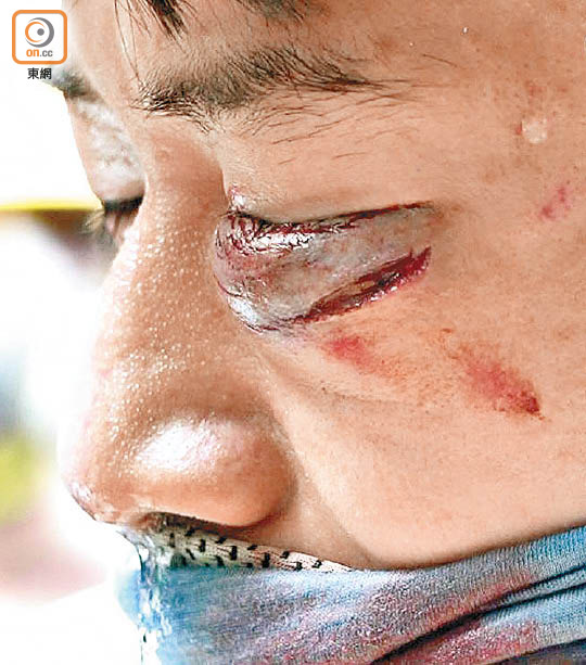 遊行變質 暴力升級 激戰半個九龍 - 東方日報