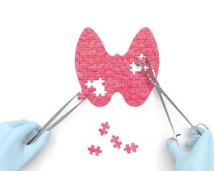 diagnosi e trattamenti personalizzati tiroide