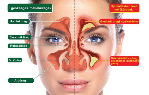 krónikus orrmelléküreg gyulladás