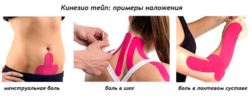 Кинезио тейп — лечебно профилактический пластырь для мышц и суставов. Средняя лестничная мышца. Разновидности спортивных тейпов