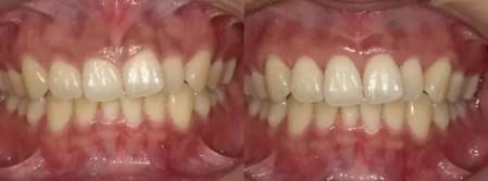 歯肉整形 | 南青山矯正歯科・審美歯科