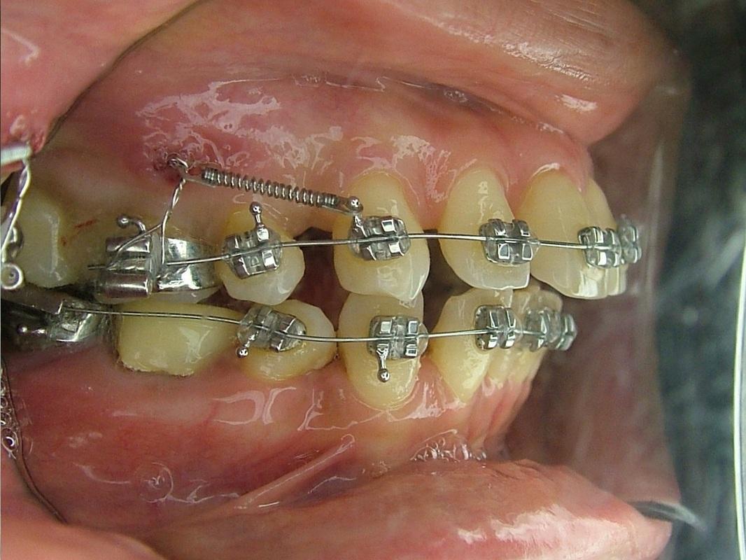 齒顎矯正用 迷你骨釘 - 蔡明晞 齒顎矯正專科醫師