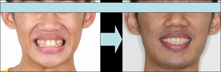 上顎暴牙(拔牙) - 蔡明晞 齒顎矯正專科醫師